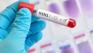 Diagnosis of Swine Flu